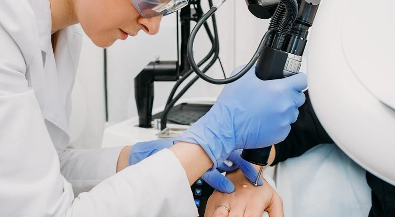 Laser Surgery Prior Authorization